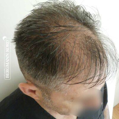 hair-transplantation-bergmann-kord-results-FUE-41001TL-before-left-001