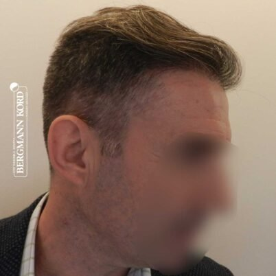 hair-transplantation-bergmann-kord-results-FUE-41001TL-left-001