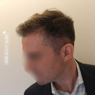 hair-transplantation-bergmann-kord-results-FUE-41001TL-right-001