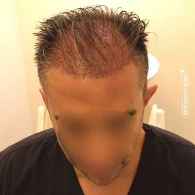 hair-transplantation-bergmann-kord-results-FUE-41001TL-this-day-front-001