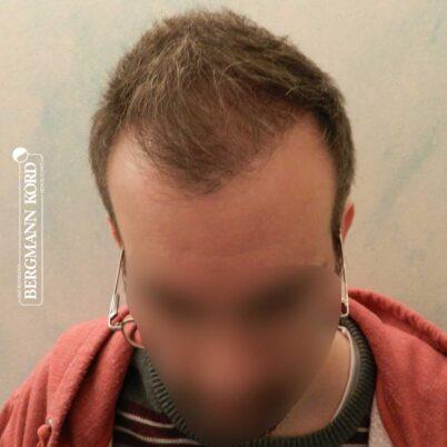 hair-transplantation-bergmann-kord-results-FUE-49048TL-3-months-later-001