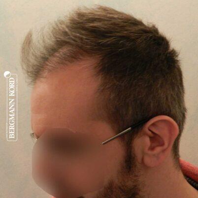 hair-transplantation-bergmann-kord-results-FUE-49048TL-3-months-later-left-001