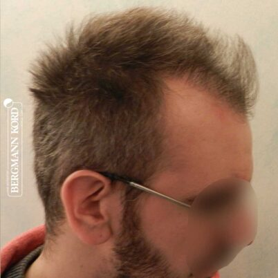 hair-transplantation-bergmann-kord-results-FUE-49048TL-3-months-later-right-001