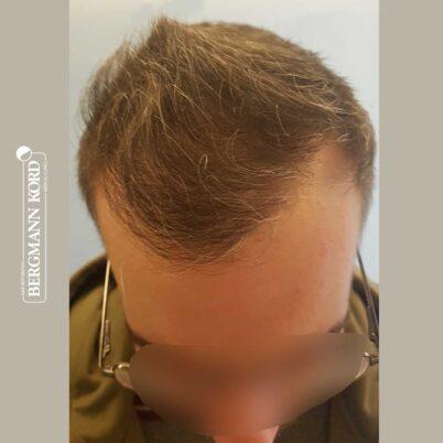 hair-transplantation-bergmann-kord-results-FUE-49048TL-6-months-later-top-001