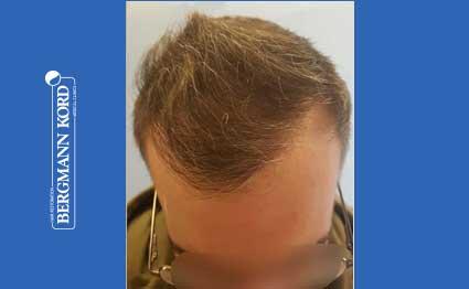 hair-transplantation-bergmann-kord-results-FUE-49048TL-after-001