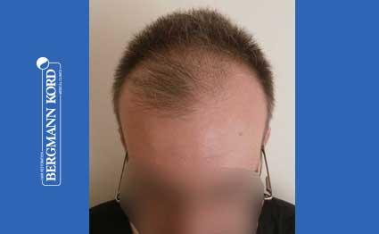 hair-transplantation-bergmann-kord-results-FUE-49048TL-before-001