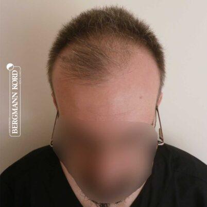 hair-transplantation-bergmann-kord-results-FUE-49048TL-before-front-001