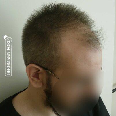 hair-transplantation-bergmann-kord-results-FUE-49048TL-before-right-001
