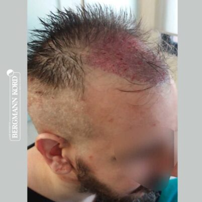 hair-transplantation-bergmann-kord-results-FUE-49048TL-during-the-operation-right-001