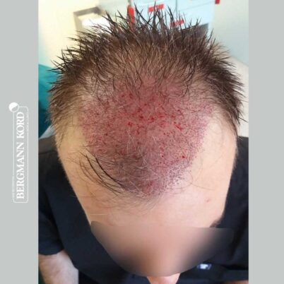 hair-transplantation-bergmann-kord-results-FUE-49048TL-during-the-operation-top-001