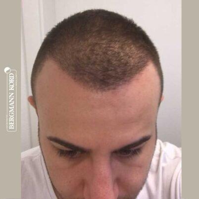 hair-transplantation-bergmann-kord-results-FUE-53046TL-3-months-front-001