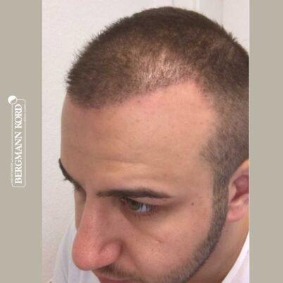 hair-transplantation-bergmann-kord-results-FUE-53046TL-3-months-left-001