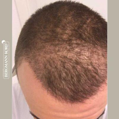 hair-transplantation-bergmann-kord-results-FUE-53046TL-3-months-top-001