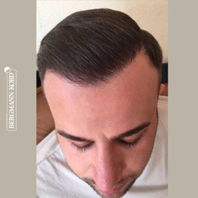 hair-transplantation-bergmann-kord-results-FUE-53046TL-6-months-front-001