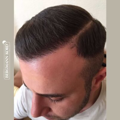 hair-transplantation-bergmann-kord-results-FUE-53046TL-6-months-left-001