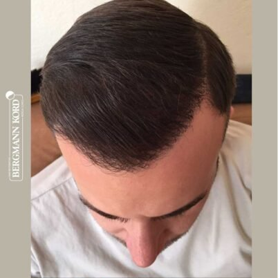 hair-transplantation-bergmann-kord-results-FUE-53046TL-6-months-top-001