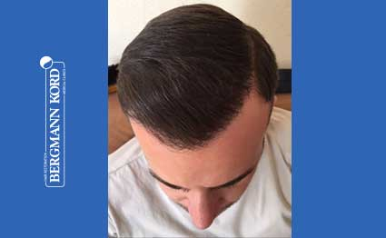 hair-transplantation-bergmann-kord-results-FUE-53046TL-after-001