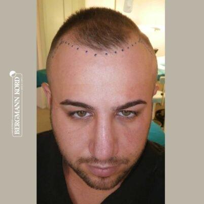 hair-transplantation-bergmann-kord-results-FUE-53046TL-before-front-001