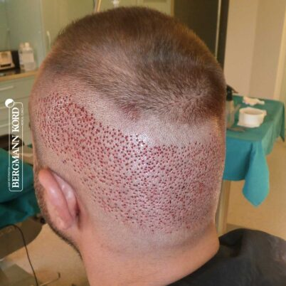 hair-transplantation-bergmann-kord-results-FUE-53046TL-during-the-operation-donor-area-left-001