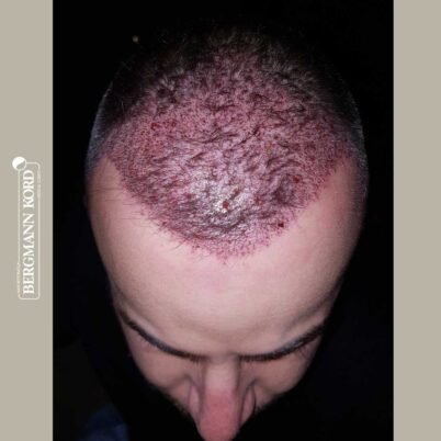hair-transplantation-bergmann-kord-results-FUE-53046TL-this-day-front-001