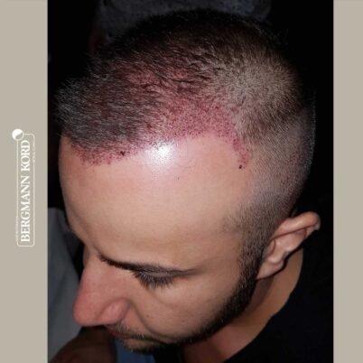 hair-transplantation-bergmann-kord-results-FUE-53046TL-this-day-left-001