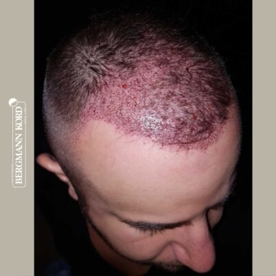 hair-transplantation-bergmann-kord-results-FUE-53046TL-this-day-right-001