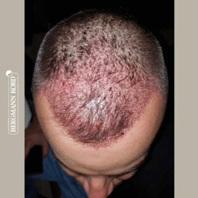 hair-transplantation-bergmann-kord-results-FUE-53046TL-this-day-top-001