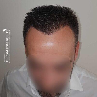 hair-transplantation-bergmann-kord-results-FUE-56047TL-10-months-later-front-001