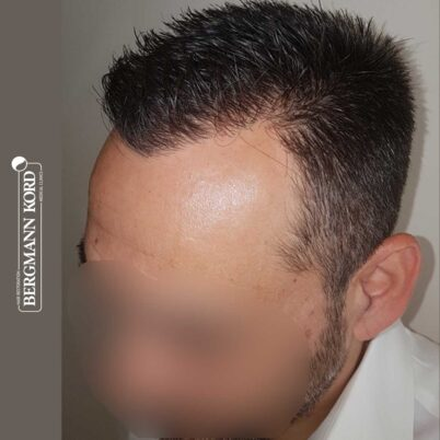 hair-transplantation-bergmann-kord-results-FUE-56047TL-10-months-later-left-001