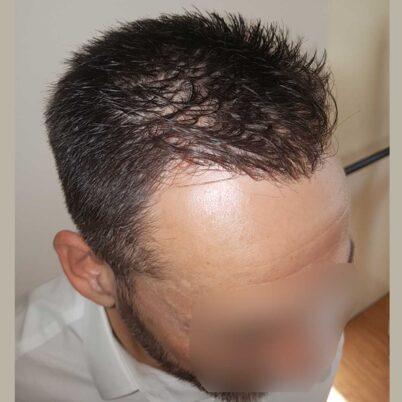 hair-transplantation-bergmann-kord-results-FUE-56047TL-10months-right-001
