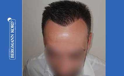 hair-transplantation-bergmann-kord-results-FUE-56047TL-after-001