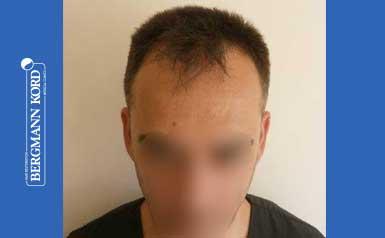 hair-transplantation-bergmann-kord-results-FUE-56047TL-before-001