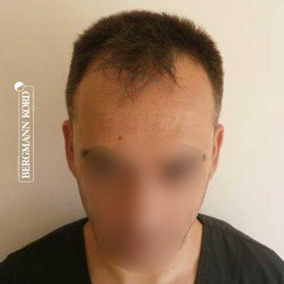 hair-transplantation-bergmann-kord-results-FUE-56047TL-before-front-001