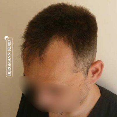 hair-transplantation-bergmann-kord-results-FUE-56047TL-before-left-001