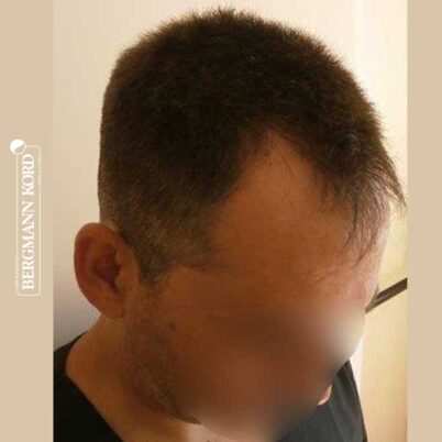 hair-transplantation-bergmann-kord-results-FUE-56047TL-before-right-001
