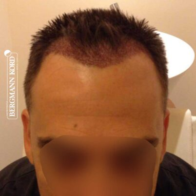 hair-transplantation-bergmann-kord-results-FUE-56047TL-this-day-front-001