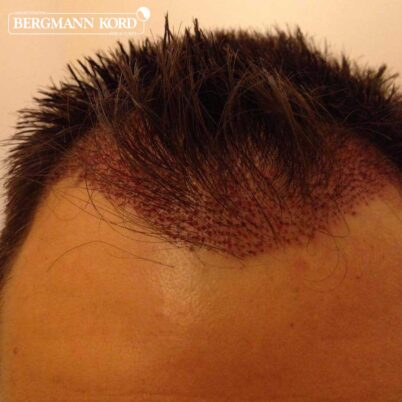 hair-transplantation-bergmann-kord-results-FUE-56047TL-this-day-front-002