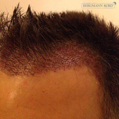 hair-transplantation-bergmann-kord-results-FUE-56047TL-this-day-left-001