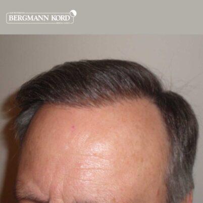 hair-transplantation-bergmann-kord-results-FUT-49021TL-after-front-right-001