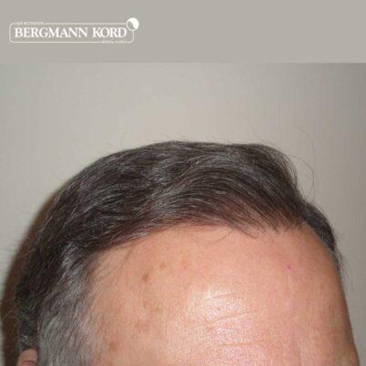hair-transplantation-bergmann-kord-results-FUT-49021TL-after-left-001