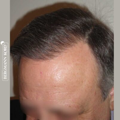 hair-transplantation-bergmann-kord-results-FUT-49021TL-after-right-001