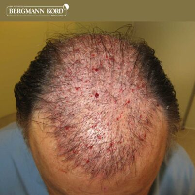 hair-transplantation-bergmann-kord-results-FUT-49021TL-after-the-surgery-front-001