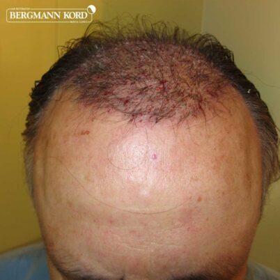 hair-transplantation-bergmann-kord-results-FUT-49021TL-after-the-surgery-top-001