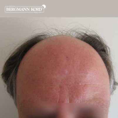 hair-transplantation-bergmann-kord-results-FUT-49021TL-before-front-001