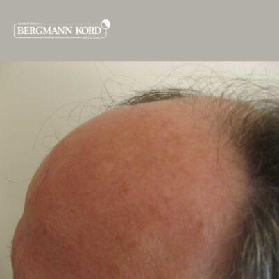 hair-transplantation-bergmann-kord-results-FUT-49021TL-before-left-001