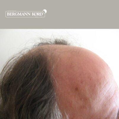 hair-transplantation-bergmann-kord-results-FUT-49021TL-before-right-001
