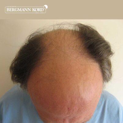 hair-transplantation-bergmann-kord-results-FUT-49021TL-before-top-001