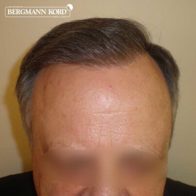 hair-transplantation-bergmann-kord-results-FUT-49021TL-one-year-after-front-001