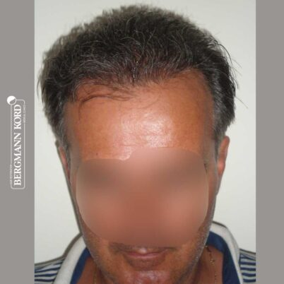 hair-transplantation-bergmann-kord-results-FUT-57030TL-12months-front-001