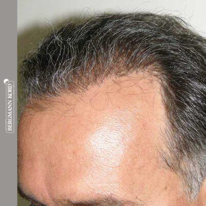 hair-transplantation-bergmann-kord-results-FUT-57030TL-12months-left-001